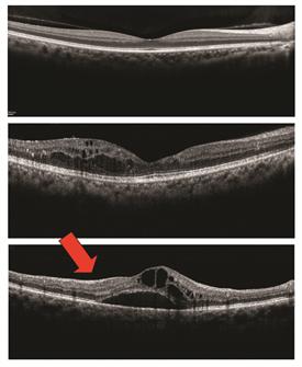 retinal edema definition