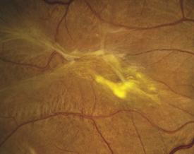 Epiretinal Membrane Sharon Fekrat MD FACS Duke University Eye Center Retina Image Bank 2012 1437 CAmerican Society Of Specialists