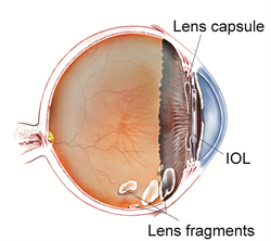 Eye Drops For Cataracts >> Retained Lens Fragments - The American Society of Retina Specialists