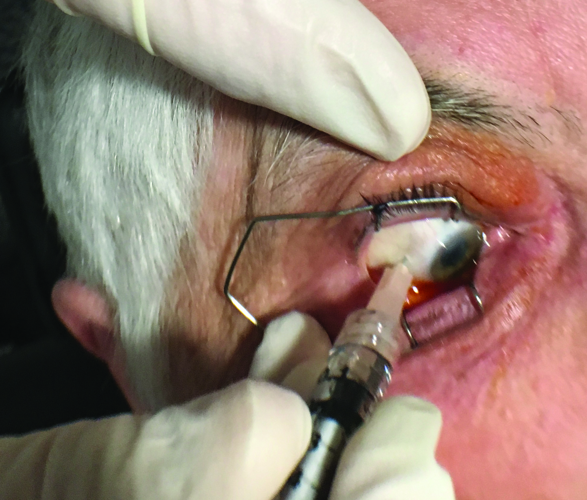 Steroid injection in eye for uveitis aline stanworth organon