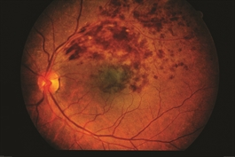 Branch Retinal Vein Occlusion The American Society Of