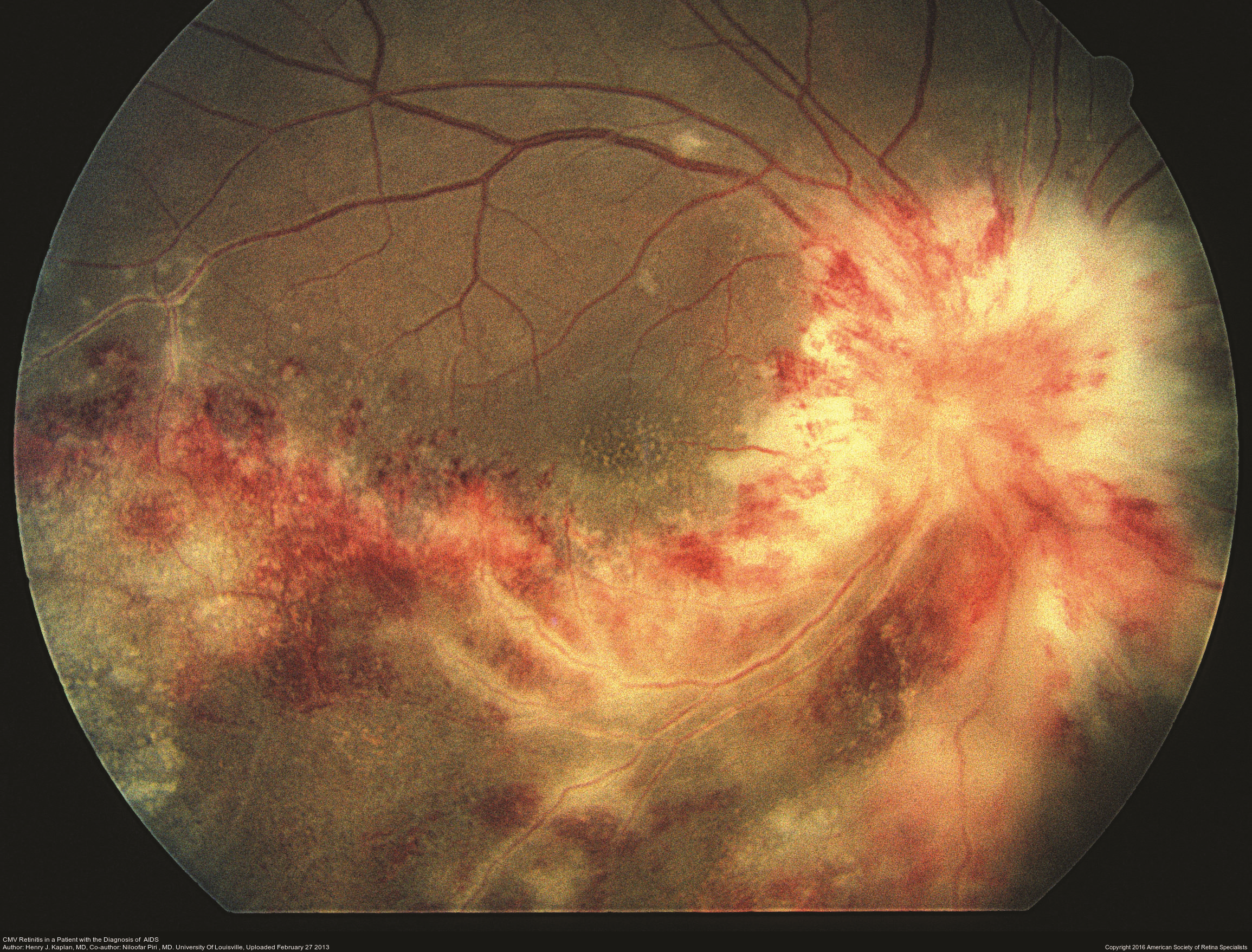 Infectious Retinitis - The American Society of Retina