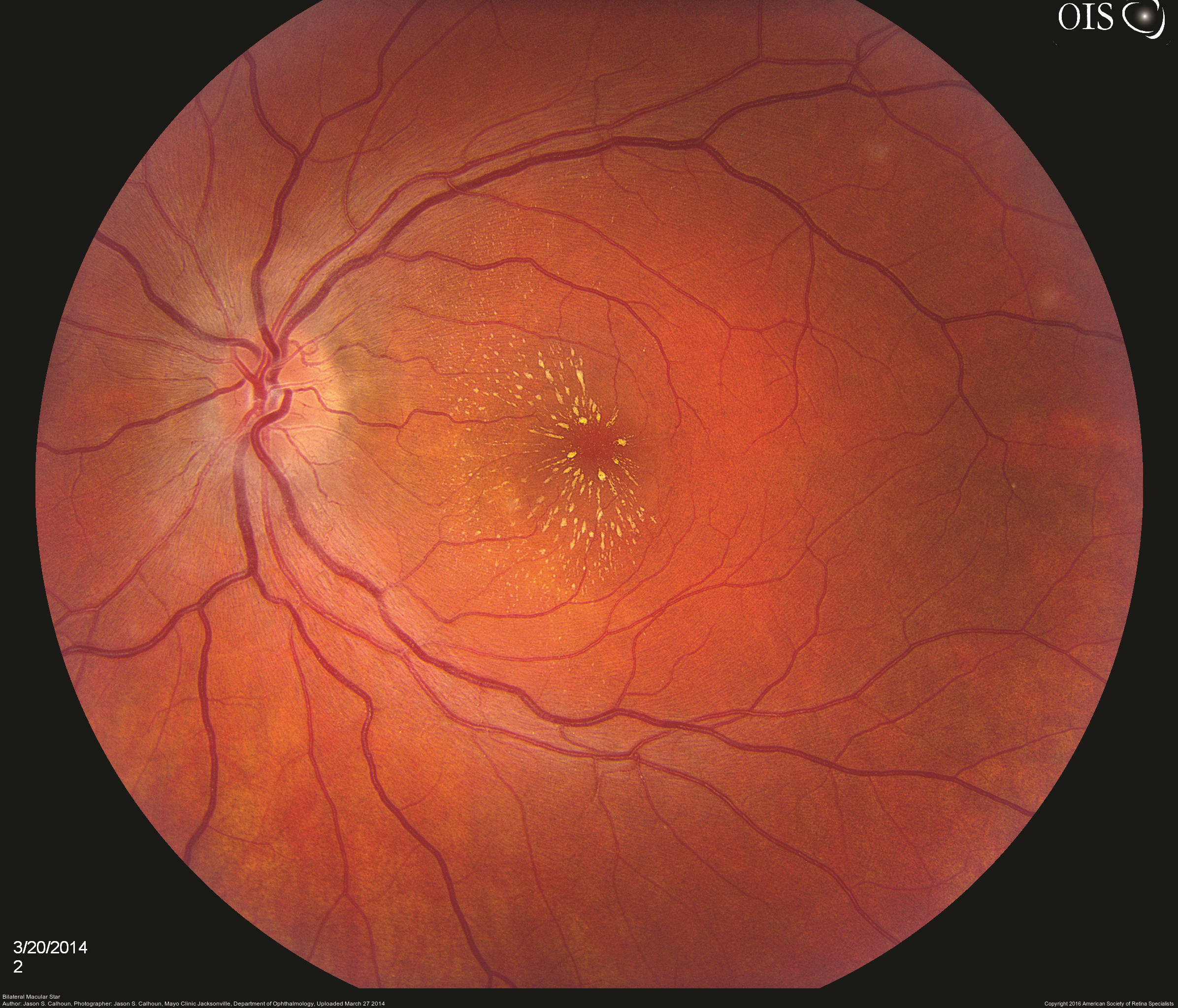 Infectious Retinitis - The American Society of Retina Specialists