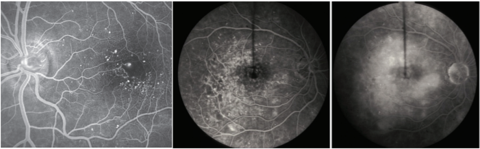 Macular Edema - The American Society of Retina Specialists - The