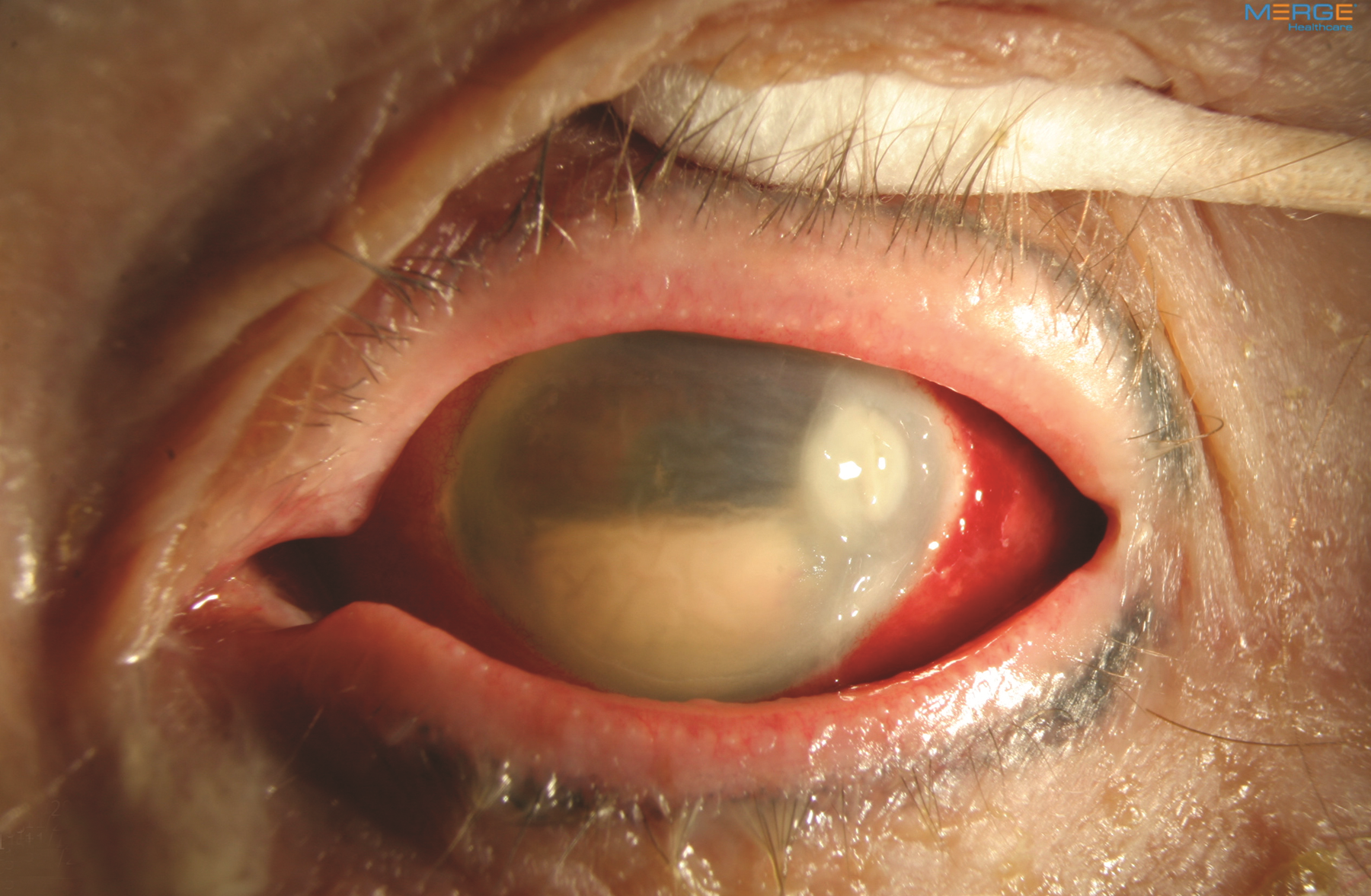 endophthalmitis the american society of retina specialists the