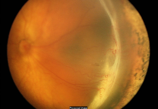 Vitrectomy The American Society Of Retina Specialists