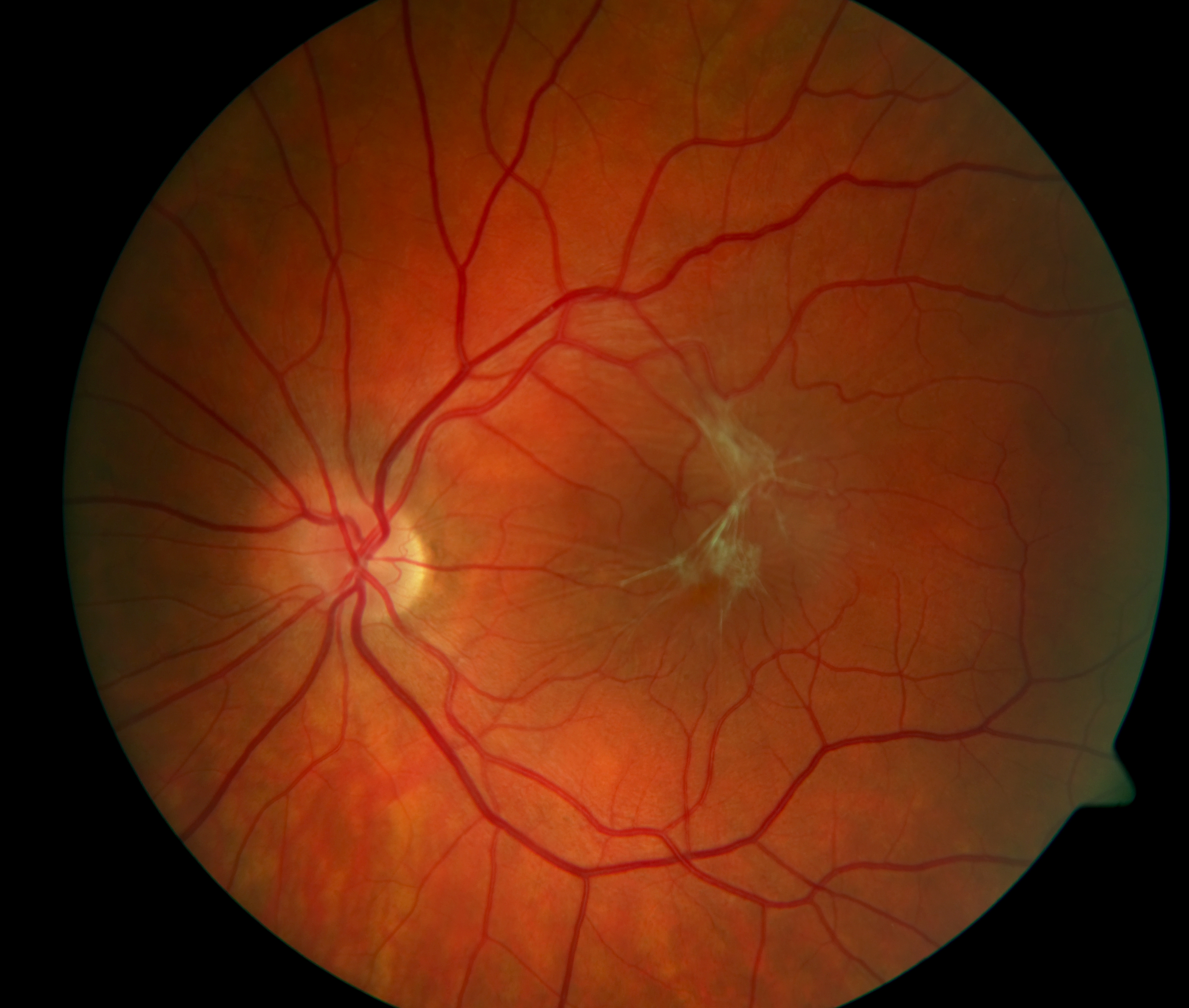 7673ade0984 ... surface of the retina and blocks the macular photoreceptors  (light-sensing cells at the center of the retina). This causes blurry and  distorted vision.