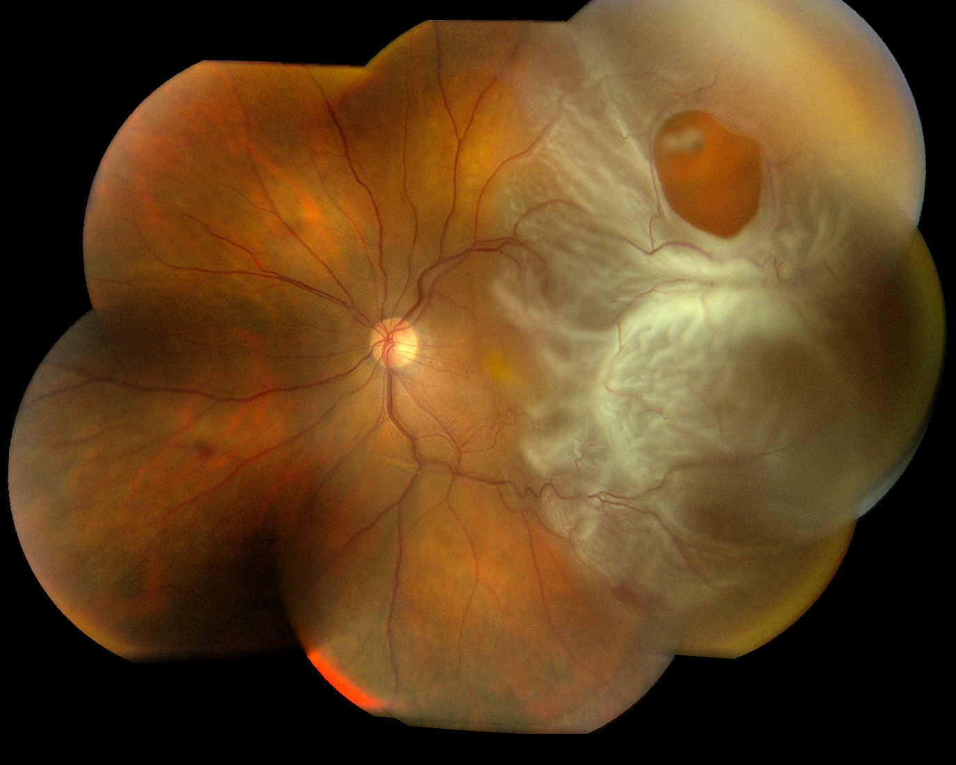 Vitrectomy - The American Society of Retina Specialists - The