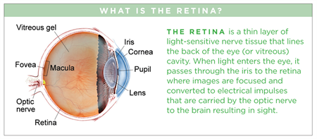 Natural Treatment Retina Detachment